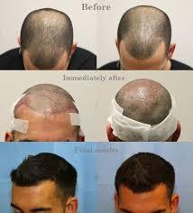 Hair Growth After Hair Transplant After Follicular