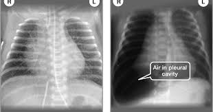 Pneumothorax X Ray Diagnosis Of Other Lung Conditions In Premature Babies