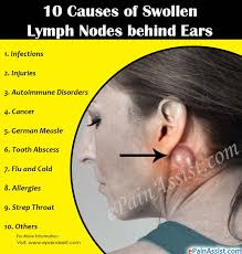 causes of swollen lymph nodes behind ears
