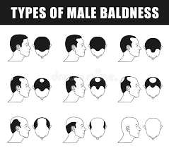 Hair Loss Stages And Types For Men Stock Vector