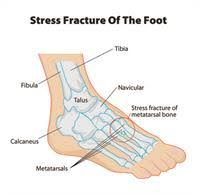 Image result for stress fracture free images. Image depicts the lower leg, ankle, hind foot and metatarsals involved in a Stress Fracture of the Lower Leg.
