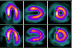 Managing Dose In Pet And Spect Myocardial Perfusion Imaging
