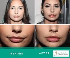 lip augmentation lip injections st