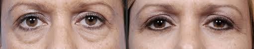 Plastische chirurgie aan rond de ogen: vergelijk
