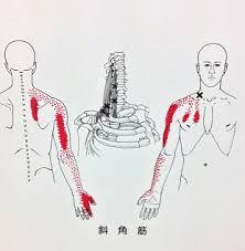 手のしびれの原因、斜角筋のトリガーポイントについて   右京区平川接骨院/鍼灸治療院グループ