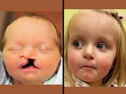 cleft lip repair cleft lip nasal reconstruction in children before after photo