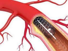 Resultado de imagen para stents