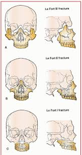 Le Fort Fracture Craniofacial Surgery Anesthesia Key