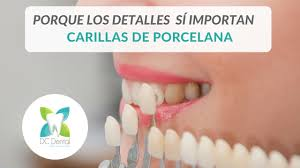 Carillas Dentales