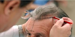 Les Prix Des Greffes De Cheveux Senvolent Capitalfr