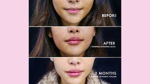 Lip Filler Chart Restylane Vs Juvederm For Lips Whats The Difference