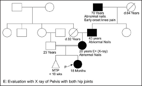 Autosomal Chart View Image