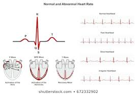 Types Of Arrhythmia Chart Royalty Free Ecg Arrhythmia Stock Images Photos Vectors