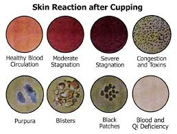Cupping Therapy Detoxification