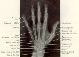 hand x ray diagram hand database wiring diagram images anatomy