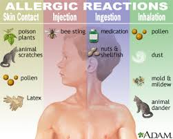 Allergies – Penn Medicine