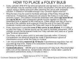 foley bulb foley bulb