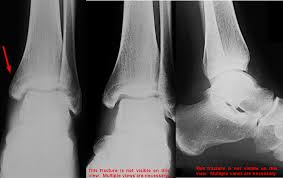 Isolated Medial Malleolus Fracture