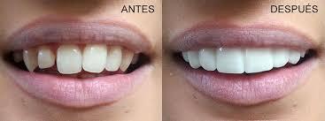 carillas dentales carillas dentales caredent albacete