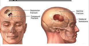 images?q=tbn:ANd9GcR w5Bl0 8h6AAsPI0P4ZvJw9dGFKsyfLSL6eLG4kNNf 7PipbVog - علل ضربه مغزی و انواع آن (بخش 2)