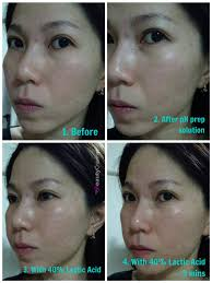 lactic acid l 40 before after review muac ls photo of makeup artists choice