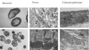 Tem Microscope Transmission Electron Microscope Tem Institute Of Oral Biology