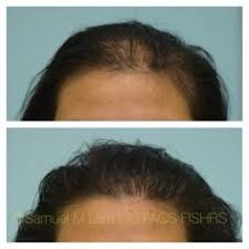 this woman started and low level laser therapy 8 months ago then underwent a single prp acell injection session 6 months ago and is shown before and after