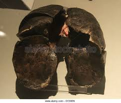 Image result for smokers lungs