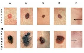 Skin Cancer Chart Abcde Skin Cancer Chart 636 Zona Med Spa