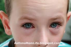 My Life as an Asthma Mom: Argh allergies!!!!