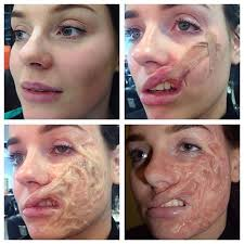 step by step of the chemical acid burn scarring sfxmakeup