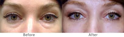 how to brighten under eye circles