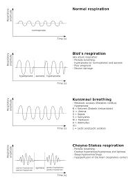 Types Of Breathing Patterns Cheyne Stokes Respiration Wikipedia