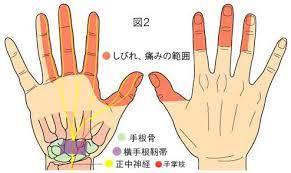 手 根 管 症候群 ツボ