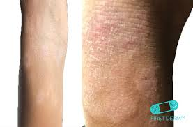 Itchy Rash Pictures: 6 most common cases and their treatment