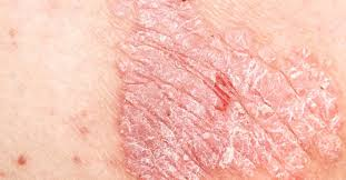 psoriasis symptoms treatment