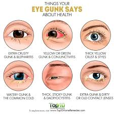 but if the eye gunk has changed in color consistency or volume it could indicate some kind of health problem