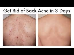 How to Get Rid of Back Acne At Home in 3 Days - YouTube | Namaste ...