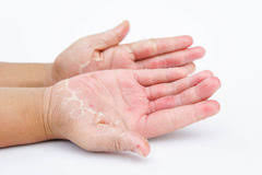 Дамангрен ( yiganerjing ) против псориазис | дерматит | екзема | сърбеж |  лишей | обриви | гъбички | себореа | хемороиди |