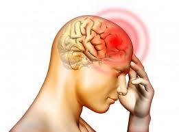 Image result for sakit kepala