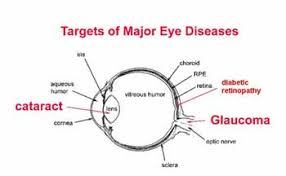 Eye Diseases Chart Cataracts Optometrist In Coldwater Sturgis Mi And