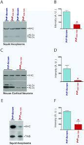 Kinesin Light Chain Antibody Prp Induces Ck2 Mediated Phosphorylation Of Kinesin Light