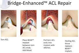 new acl surgery could cut rehab and
