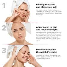 acne patch steps 3 step