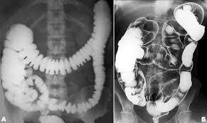 Основы ОБП Лучевая диагностика болезней органов брюшной полости  Для диагностики ранних стадий рака прямой и сигмовидной кишки стало применяться и трансректальное УЗИ