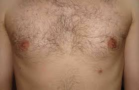 Third (supernumerary) nipple: Types, causes, and removal