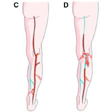Small Saphenous Vein Ssv Refl Ux The Red Line In The