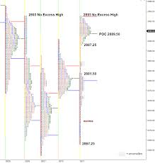 Anomalies Stretched Out Elongated Profile Chart Sp 500 E