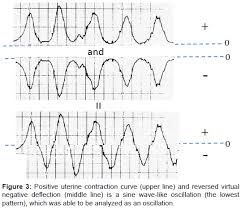 Pregnancy Labor Contractions Chart Uterine Contractions In Normal Labor Developed By A Positive