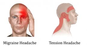 acupuncture is particularly helpful for tension headacheigraines tension type headaches feel like a tight band around the eyes and forehead